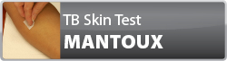 Tuberculosis Skin Test (Mantoux) e-learning banner